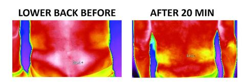 incrediwear thermographic image