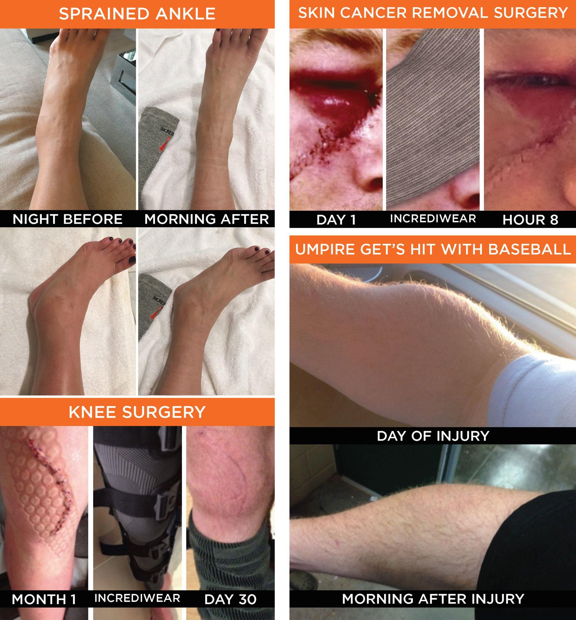 Decrease_Inflammation_Studies